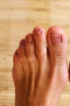 Vestavia Hills Podiatrist | Vestavia Hills Hammertoes | AL | Alabama Foot Institute |