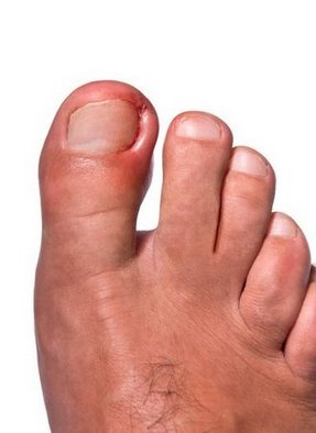 Vestavia Hills Podiatrist | Vestavia Hills Ingrown Toenails | AL | Alabama Foot Institute |